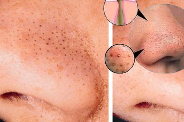 Cómo quitar los puntos negros de la cara? | Oxígeno Digital